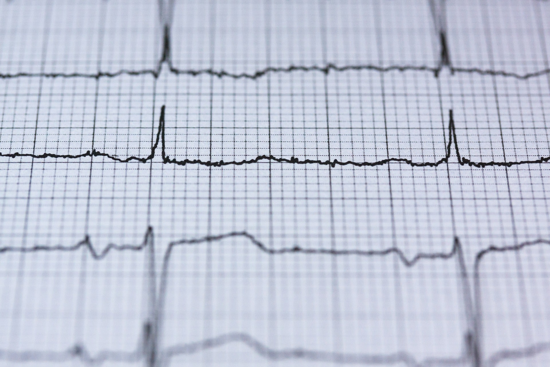 check up cuore promozione poliambulatorio gulliver